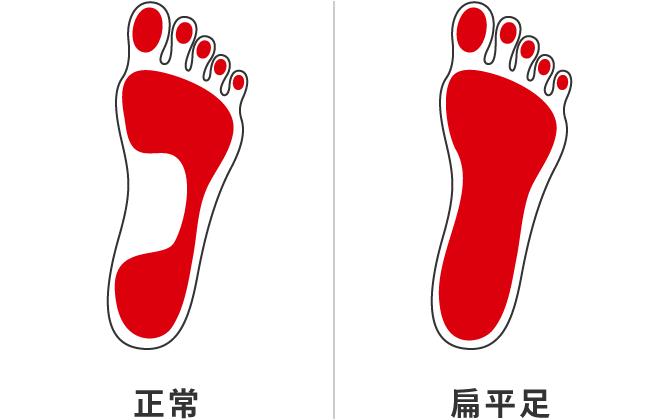 正常の足跡と扁平足の足跡