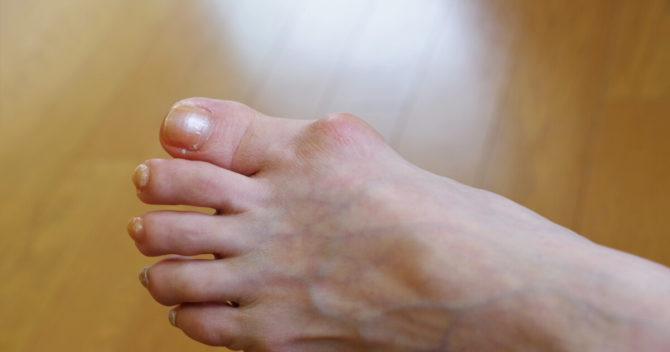 外反母趾とは?原因と予防・対策について